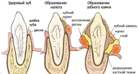 Схема образования зубного камня